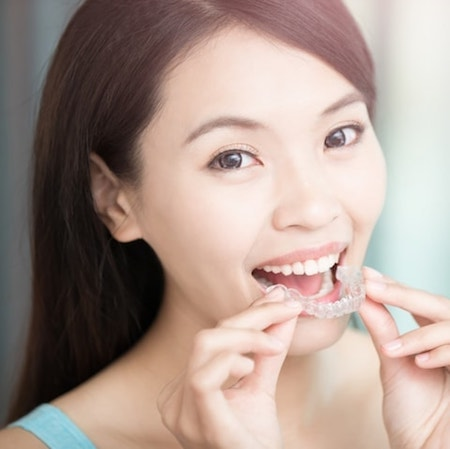 Asian woman putting in her Invisalign® clear aligner