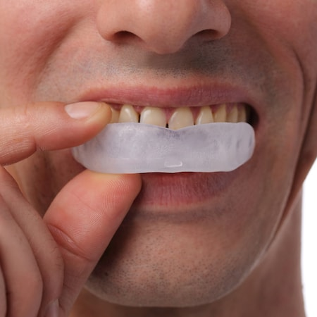 Man with bad teeth inserting his new mouth guard from our dentists in White Plains
