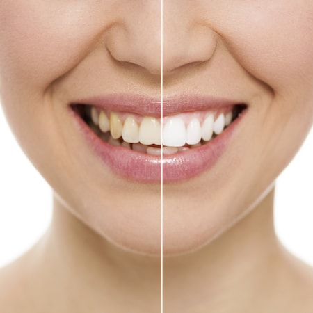 Split image to show the before and after of teeth whitening