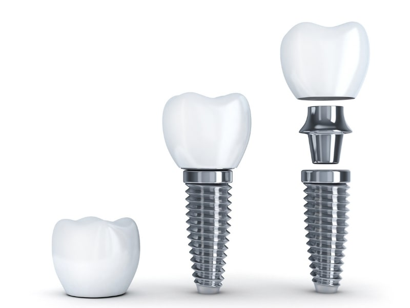 Diagram of the three parts of a dental implant - post, abutment, and crown
