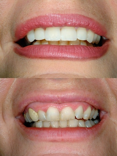 Before and after of smile with full mouth reconstruction.