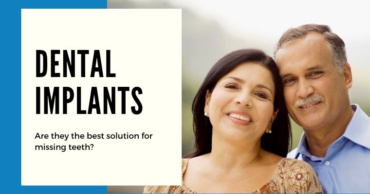 Dental Implants - Are they the best solution for missing teeth?